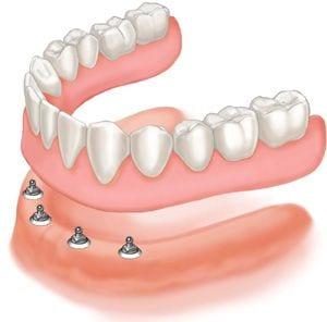 failing teeth 32 pearls dentistry Seattle and Tacoma