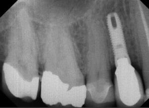 dental implant 2