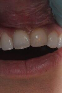 Before Veneers at 32 Pearls Seattle Dentistry