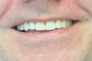 After Veneers, 32 Pearls Seattle Dentistry